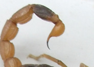 梦见自己怀孕并让蝎子蛰了怎么办